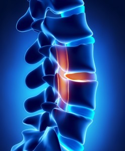 Herniated disc with pressure on spinal cord